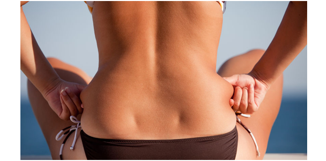 Say Goodbye to Cellulite With Dr. Simon Ourian's Cellulite Treatment Method